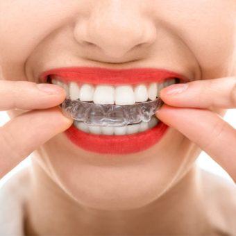 Invisalign White Rock, BC Dentist | White Rock Dental Group