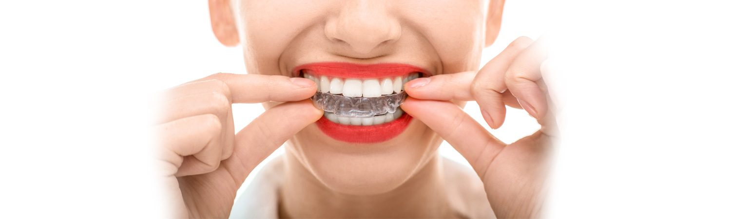 Invisalign White Rock, BC Dentist | White Rock Dental Group